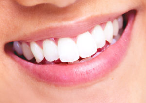whitening and dental disease prevention smile photo