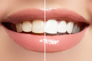 teeth whitening murfreesboro